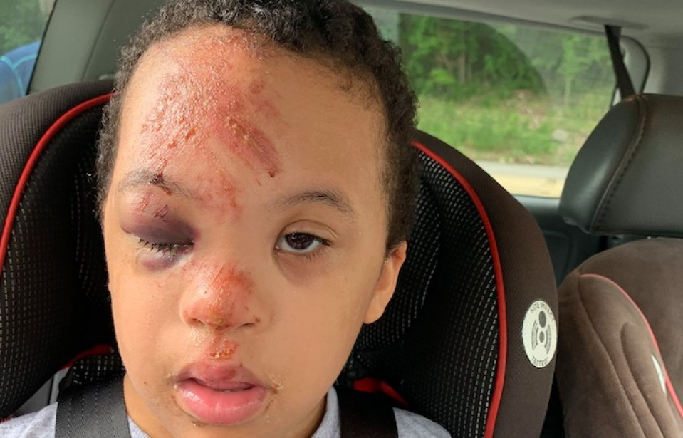 7-Year-Old with Down Syndrome Found Bloody on School Bus, and the School Won't Provide Answers