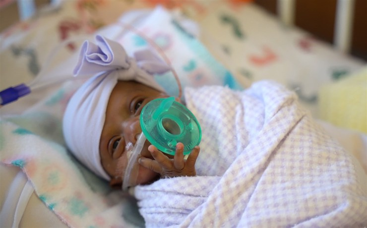 World's Smallest Baby Born