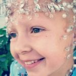 """Girl with Alopecia Won """"Crazy Hair Day"""" at School with These Beautiful – and Creative! – Jewel Designs"""