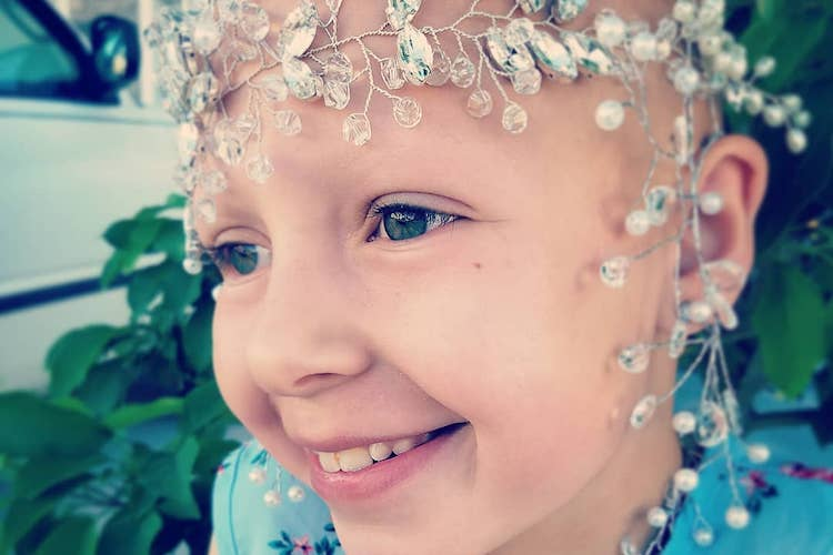 gianessa wride: girl with alopecia wins crazy hair day at school
