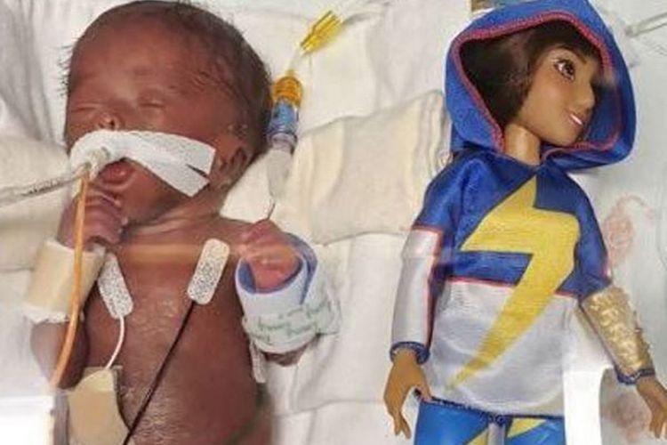 kallie bender: baby born smaller than a barbie at 25 weeks goes home after 150 days in the hospital