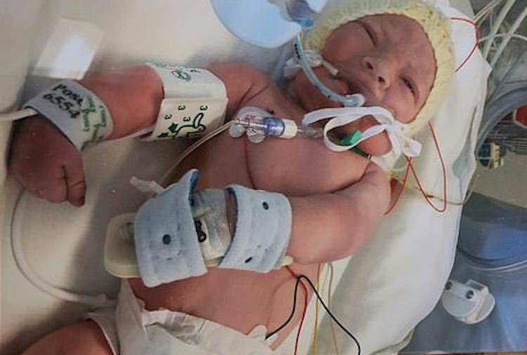 Baby Oscar: Unresponsive Baby Opens Eyes Just As Parents Say Their Final Goodbyes and Doctors Turn Off Life Support