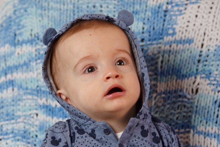 Michael Labuschagne: Baby with Rare Tumor Who Awoke from a Coma with a Smile Needs Life-Saving Surgery in Boston