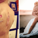 "Nine-Year-Old Cancer Survivor Told to Cover Up ""Scary"" Treatment Scars; Spreads Body Positivity for All"