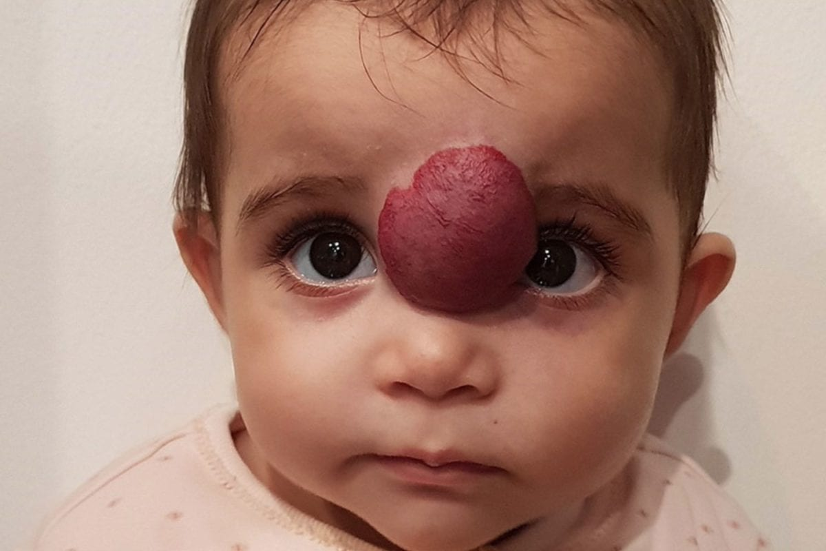 baby has growth removed from her face just before her first birthday, now her parents want to share her story for others