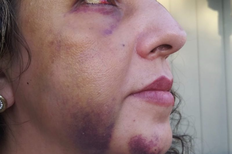a california mom was reportedly beaten up by the same teens who were bullying her daughter when she went to talk to the school principal