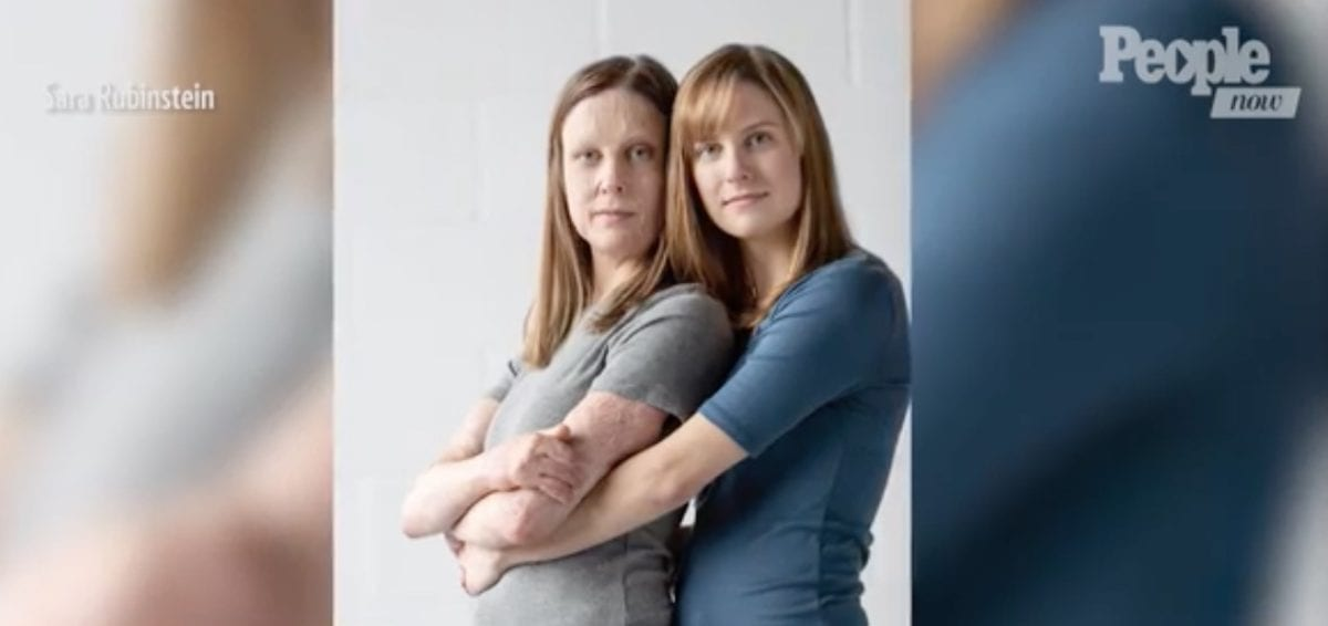 Identical Twin Burned in Fire Compares Herself to Sister