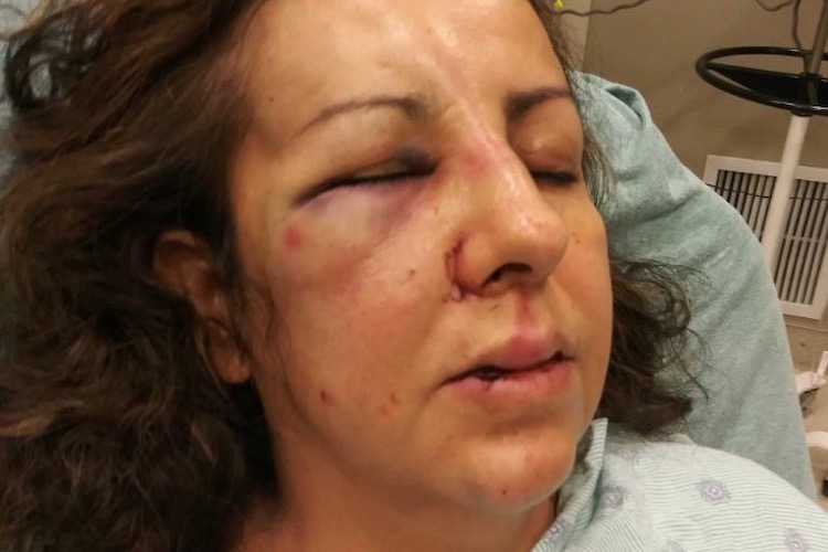 A California Mom Was Reportedly Beaten Up by the Same Teens Who Were Bullying Her Daughter