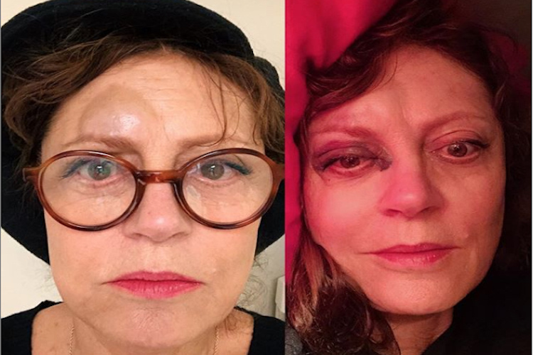 Celebrity Injuries Susan Sarandon