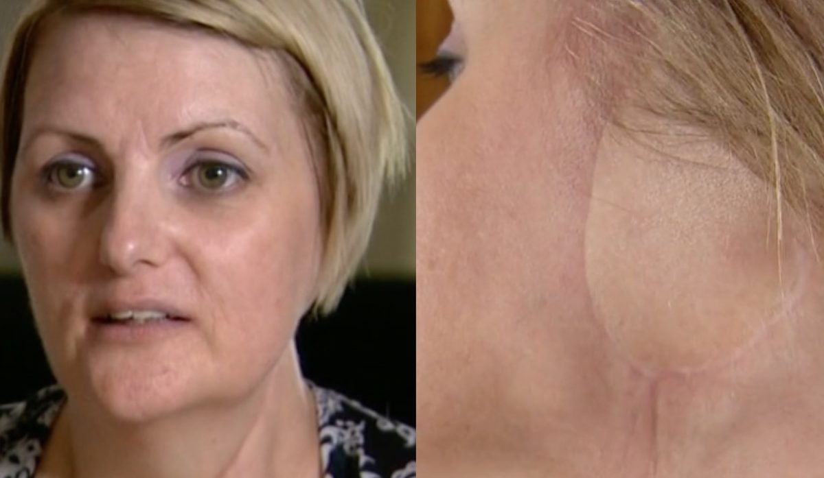 Mom Has Ear Amputated After Getting Skin Cancer Due to Tanning Addiction, Now She Wants Others to Learn From Her Mistakes
