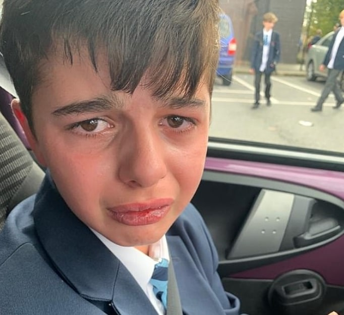 a teen boy with autism was beaten and bullied at school for months, and now his mother is speaking out