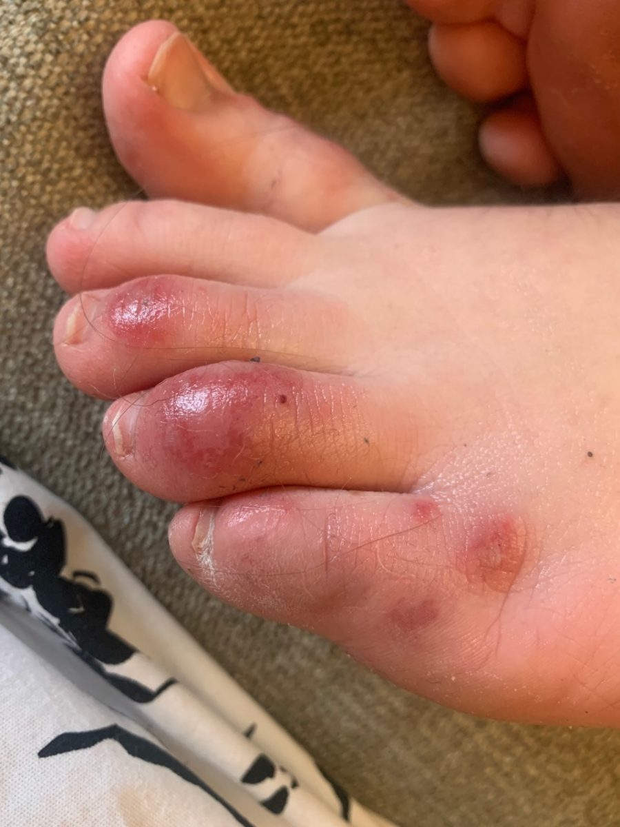 """doctors say 'covid toes' may potentially be an early symptom for young people with the virus   covid toes """"is a manifestation that occurs early on in the disease, meaning you have this first, then you progress."""""""