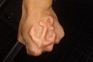 25 subdermal implants that will make your skin crawl