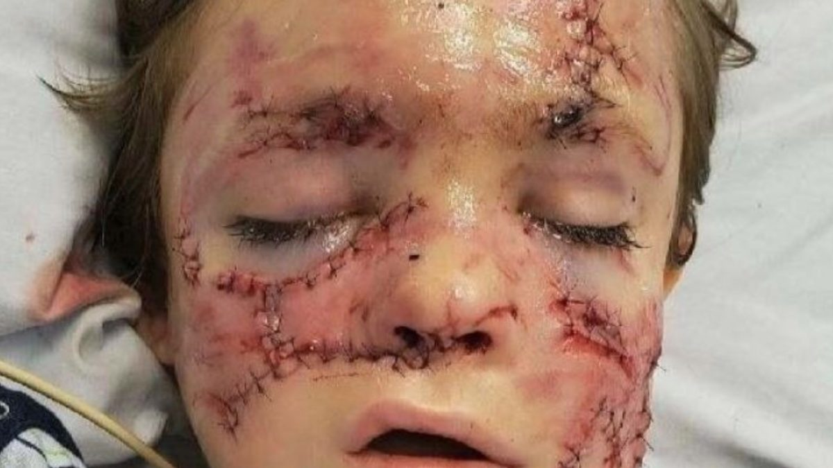 Six-Year-Old Survives Horrific Dog Attack That No One Saw Coming