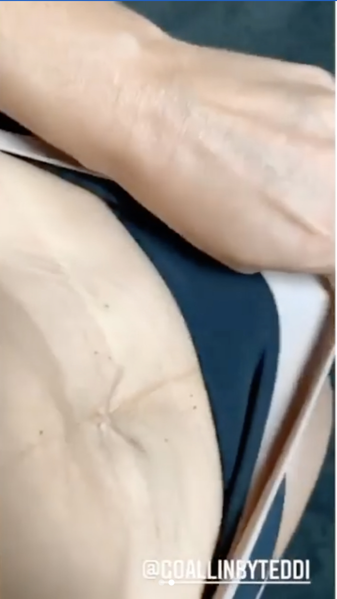 'RHOBH' Star and Mom-of-Three Teddi Mellencamp Shares Video of Her Post-Baby Body: Stretch Marks, Loose Skin, and All