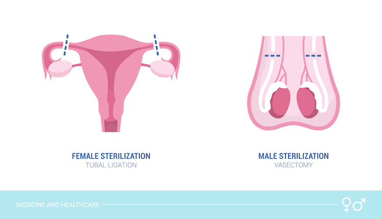 tubal ligation vs. vasectomy: which is the better option?
