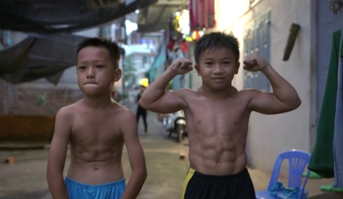 """10-year-old dreams of being a bodybuilder after being diagnosed with 'superhero' condition that makes him very muscular 