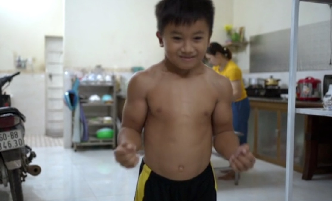 10-Year-Old Dreams of Being a Bodybuilder After Being Diagnosed With 'Superhero' Condition That Makes Him Very Muscular