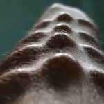 25 Subdermal Implants That Range from 'Okay' to 'WTF?'