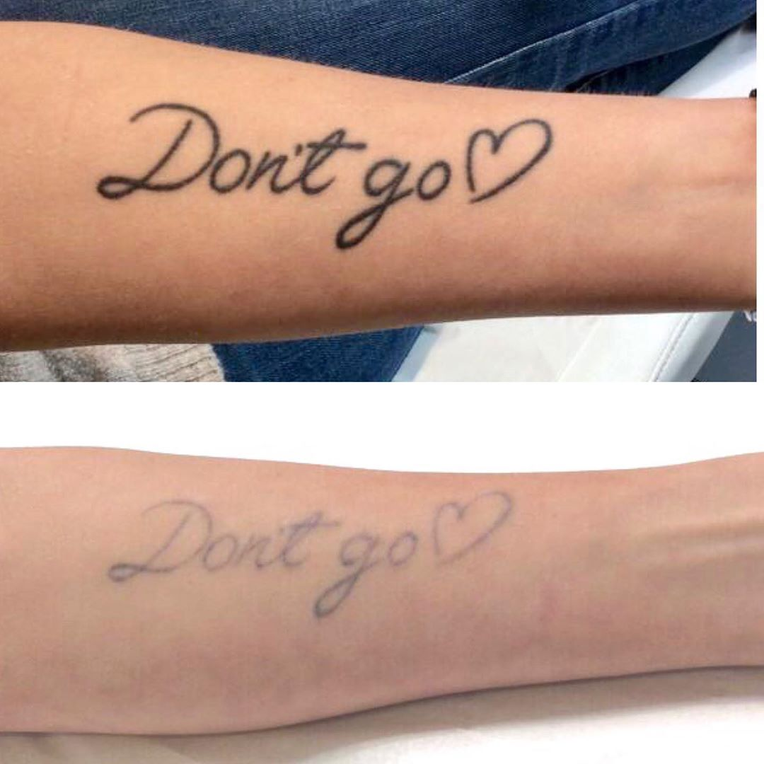 25 tattoos that people regret getting