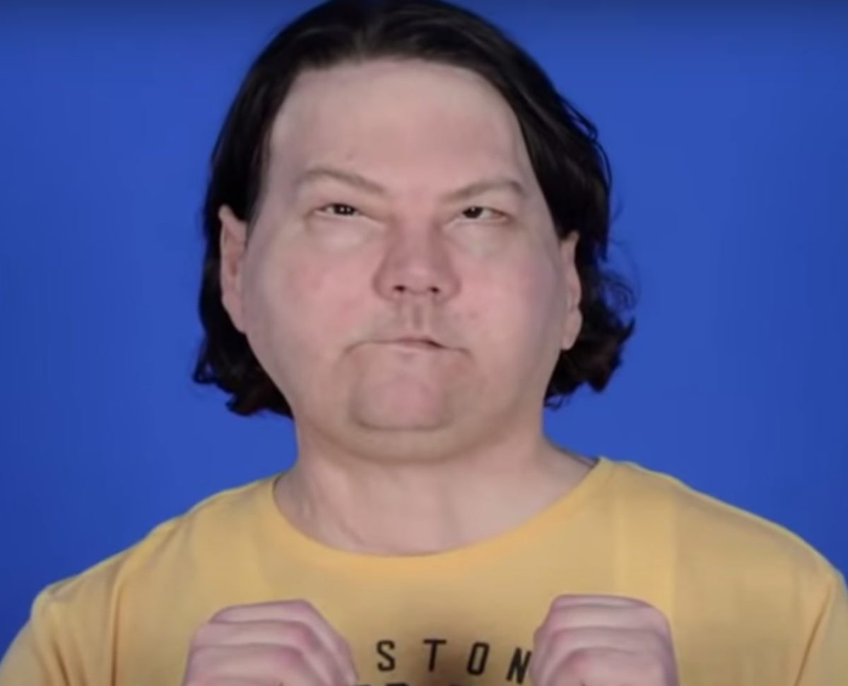 man undergoes world's first face and hands transplant