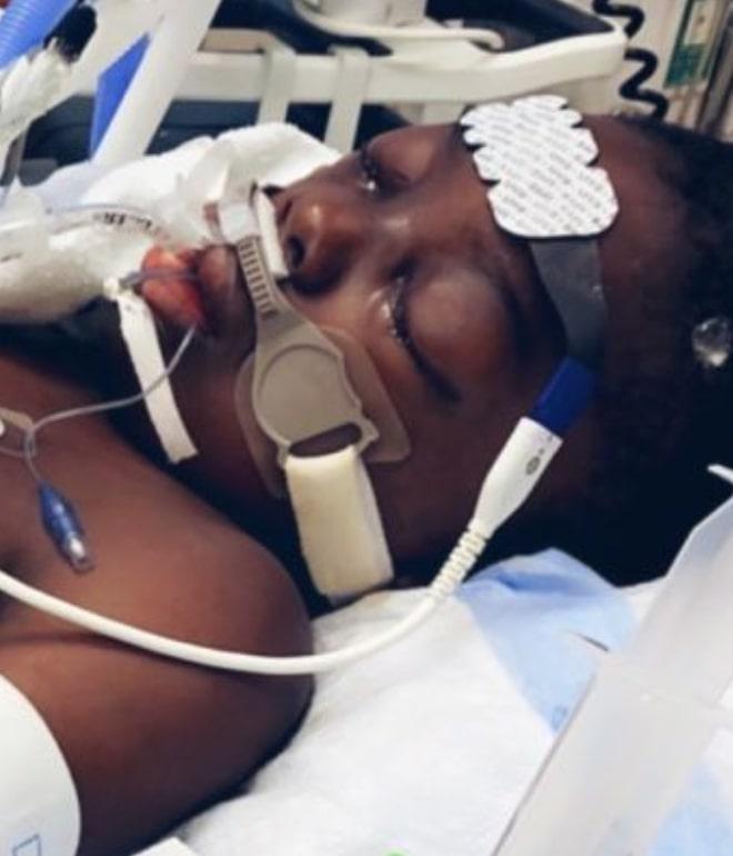 10-year-old boy battles covid-19 complication, leg amputated