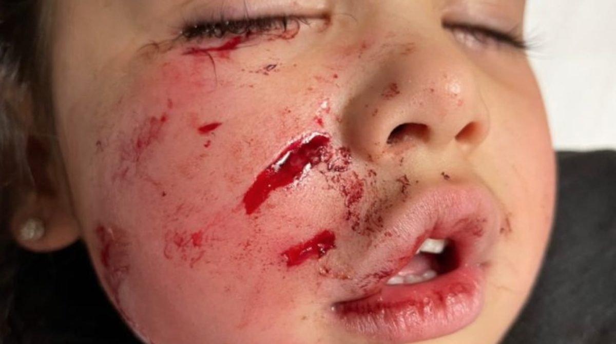 unprovoked pit bull mauls 3-year-old's face at restaurant