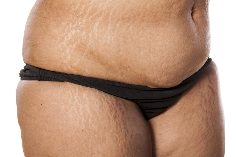 My Fiancé Won't Let Me Wear a Bikini and My Self-Esteem Is Severely Suffering: Advice?
