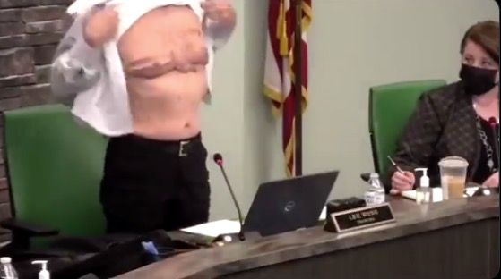 official reveals his military scars during a meeting to condemn aapi hate, asks 'is this patriot enough?'
