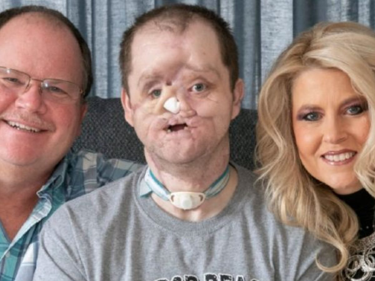 mom rallies for son's face transplant after suicide attempt