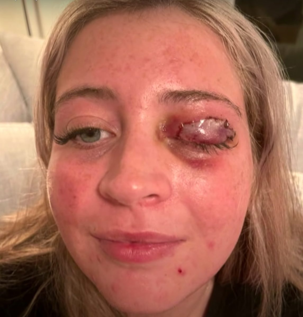 23-year-old woman gets eyelid ripped off by her lash technician's chihuahua