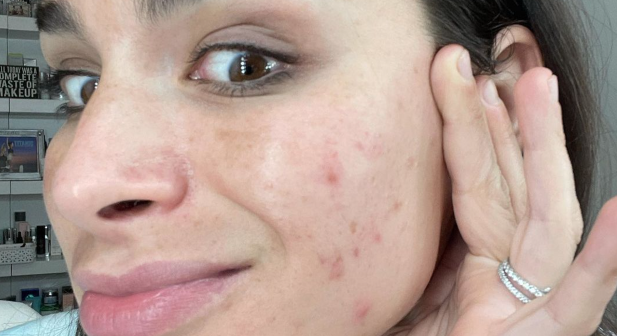 pregnant ashley iaconetti floored by pregnancy acne