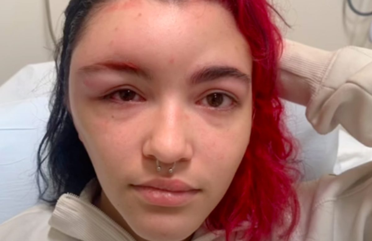 19-year-old goes viral on tiktok after recording her allergic reaction to hair dye