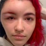 19-Year-Old Goes Viral On TikTok After Recording Her Allergic Reaction To Hair Dye: 'Always Patch Test Before Dyeing Your Hair'